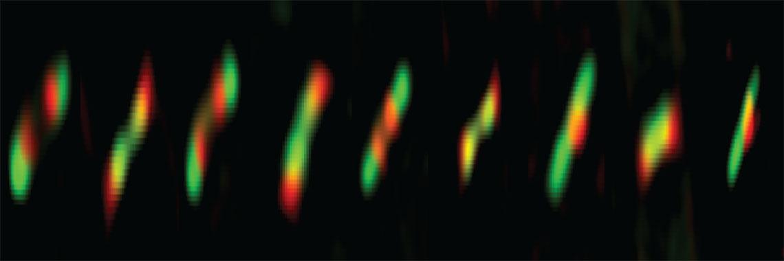 Protein Rings in E. coli