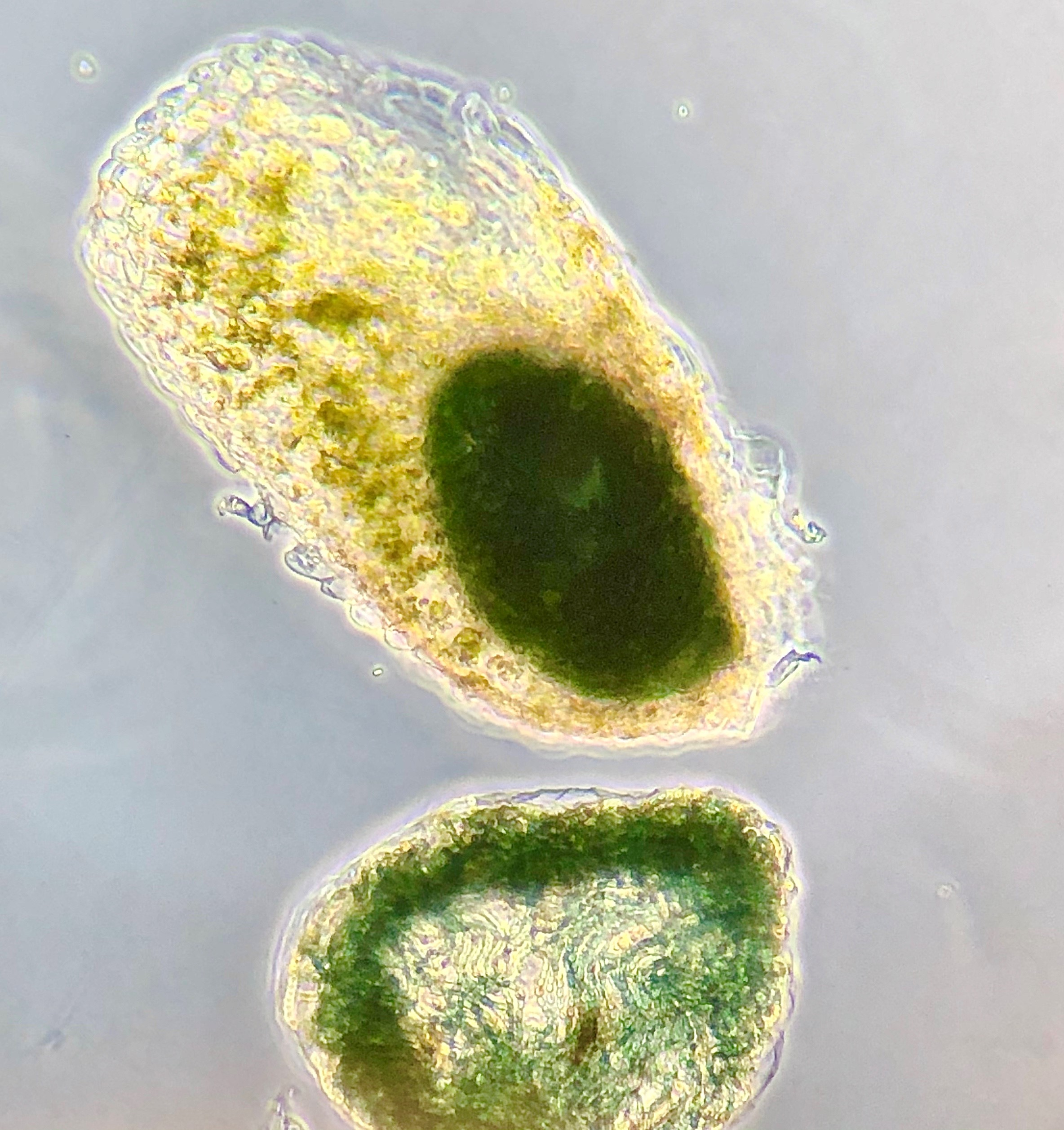 コロナ バクテリア