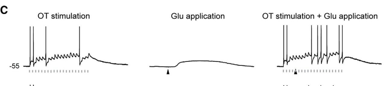 脱分極した視床ニューロンの応答