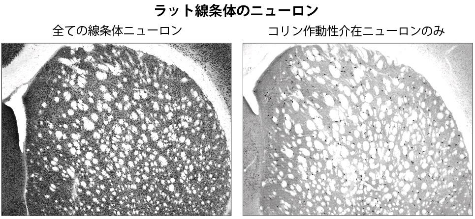 コリン作動性介在ニューロン