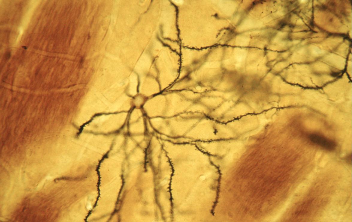 Spiny Neurons Receive Dopamine
