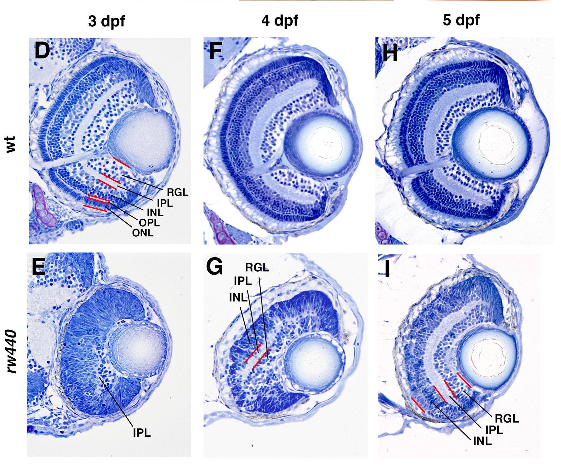 ゼブラフィッシュの網膜発生