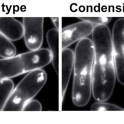 Condensin is a key player in successful chromosome segregation